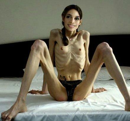 Секс анорексия фото