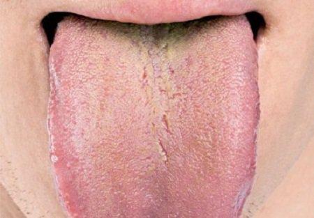 Язык расскажет о состоянии вашего здоровья