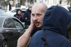 В Херсоні депутат відкусив вухо активісту. ВІДЕО