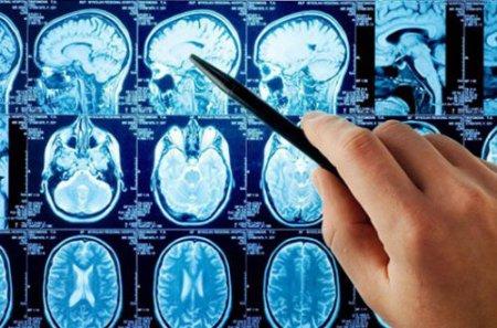 Уникальная компьютерная игра сокращает риск возникновения недуга Альцгеймера - медики