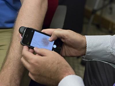 На базі смартфона Nokia створили пристрій для діагностики раку шкіри