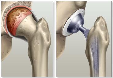 Сустав тазобедренный замена выбор боль в тазобедренном суставе при поднятии ноги